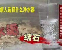 结石病人怎么选择净水器?哪个牌子净水器适合结石病人?